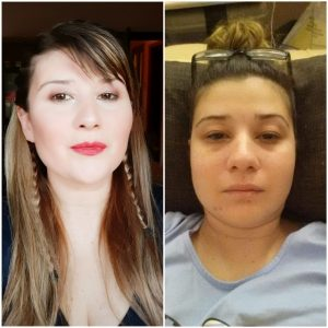 Photo of Rebecca Camilleri - one showing her with make up and ready to go out and the other photo of her at home in pain